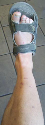 bruises on leg